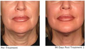 This non-invasive treatment is great for lifting the face, neck, under ...