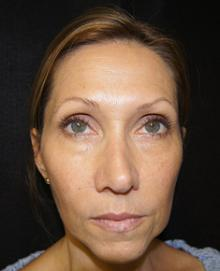 Before Results for Cosmetic