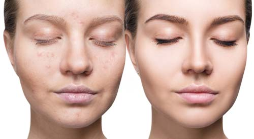 Microneedling With Prp In Santa Clarita And Valencia